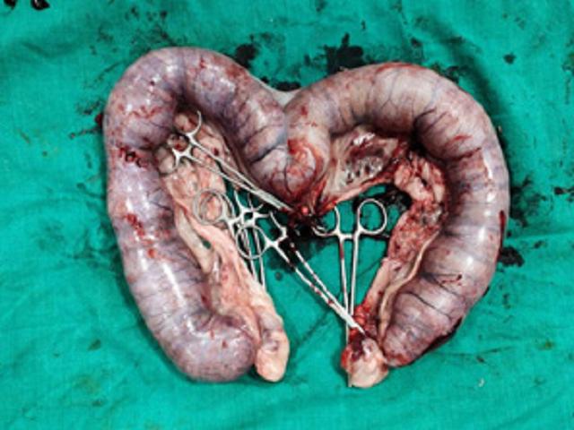 Figure 2: Pus filled uterus